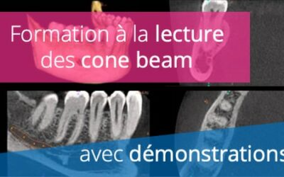 Formation à la lecture d'examens Cone Beam CT (CBCT)